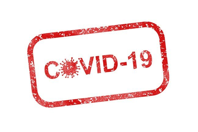 Testiranje na COVID 19
